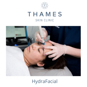 HydraFacial Treatment at Thames Skin Clinic are tailored to your skin's unique needs.
