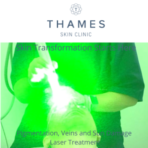 Laser treatment for veins, thread veins, redness and vascular lesions, Pigmentation and sun damage a Thames Skin Clinic in Twickenham